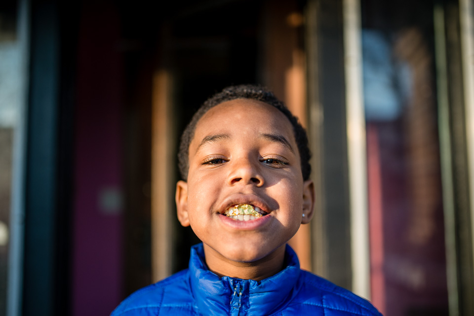 boy-with-gold-candy-foiled-teeth